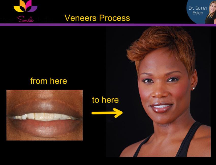 Dr. Susan Estep Smile makeover