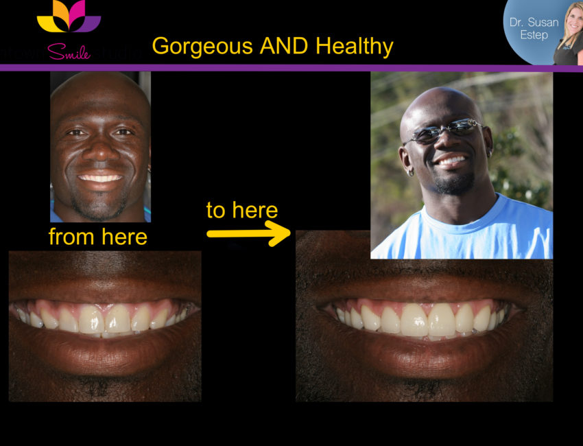 Atlanta midtown teeth