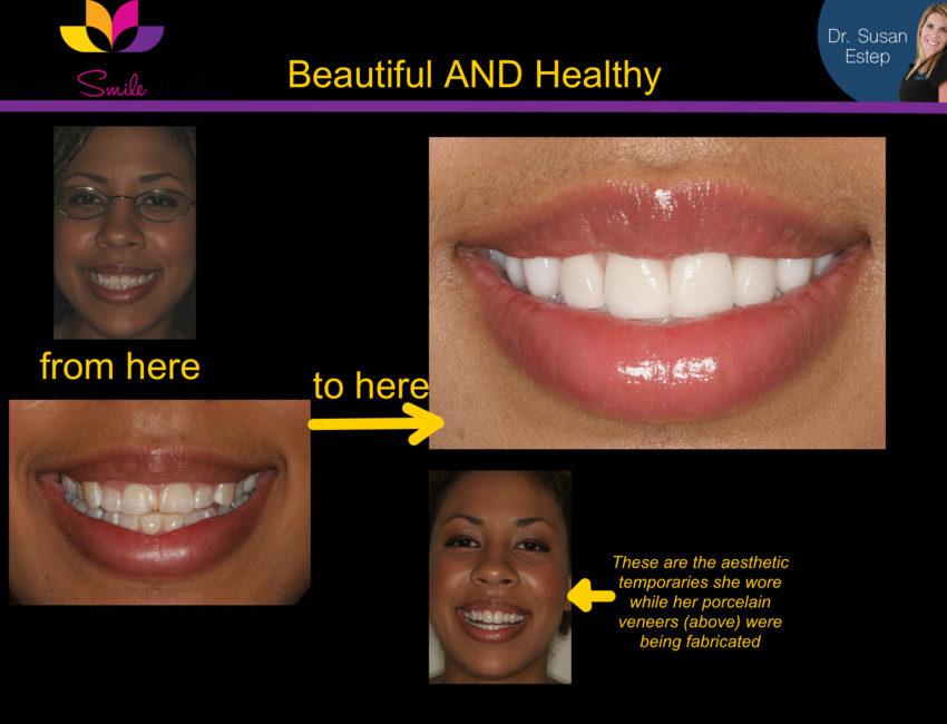 healthy teeth atlanta