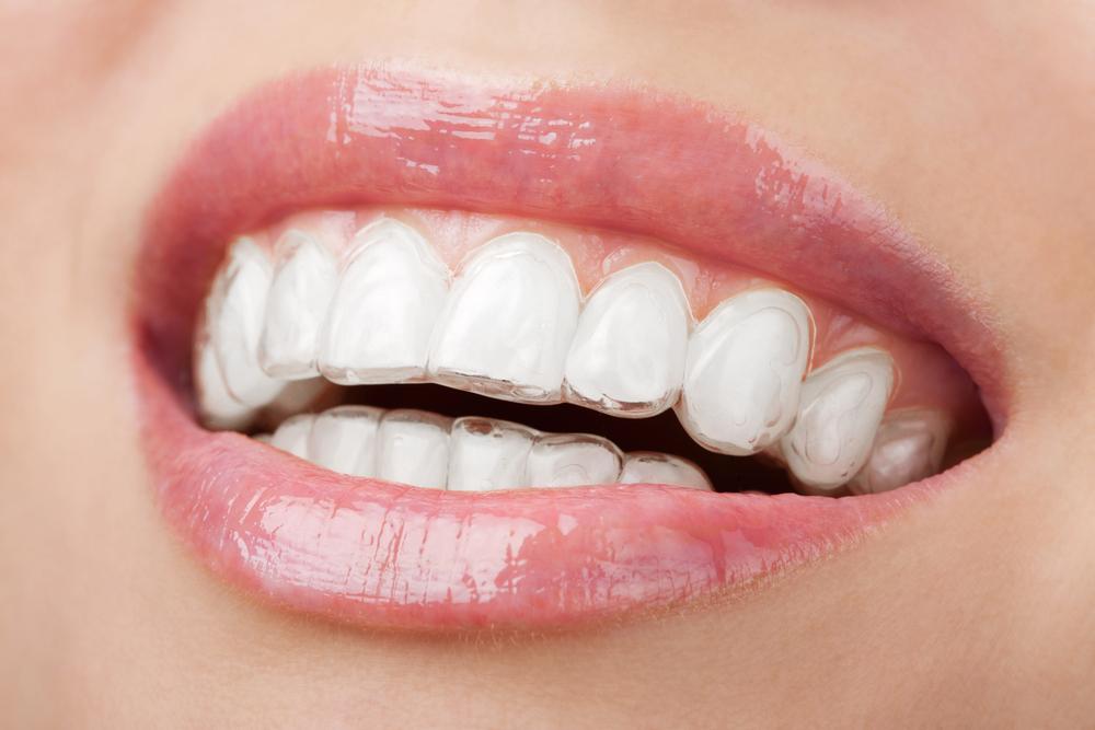 Dr Susan Estep - Intown Smile Studio