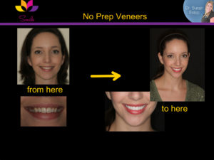 No Prep Veneers