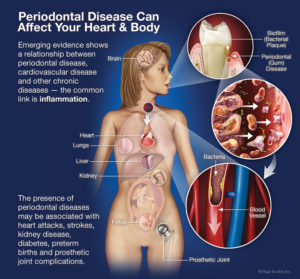 periodontal-disease-affects-heart-body (1)
