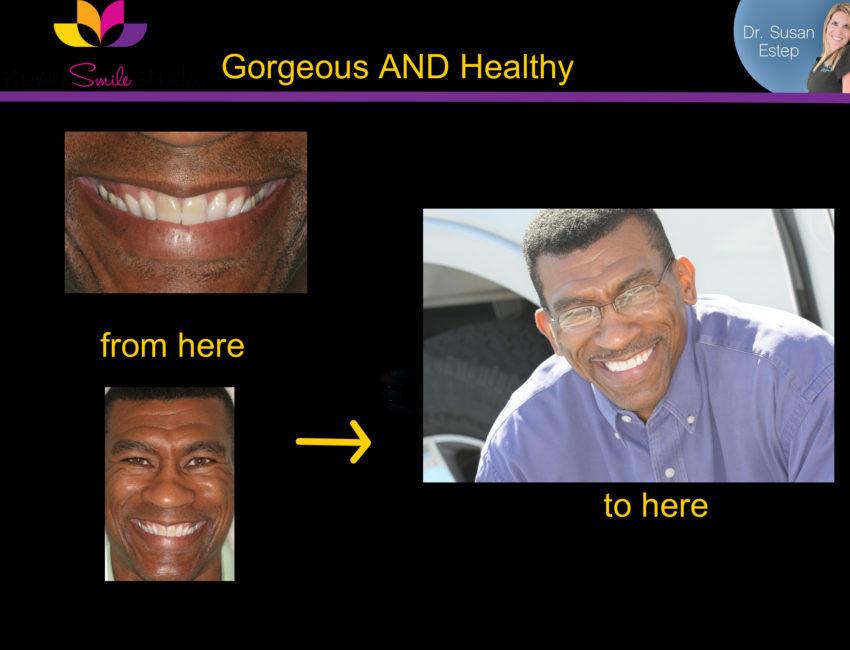 Dr. susan estep teeth