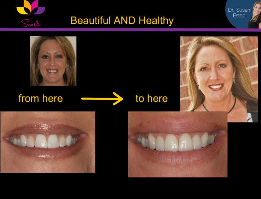 Dr. Susan Estep dentistry