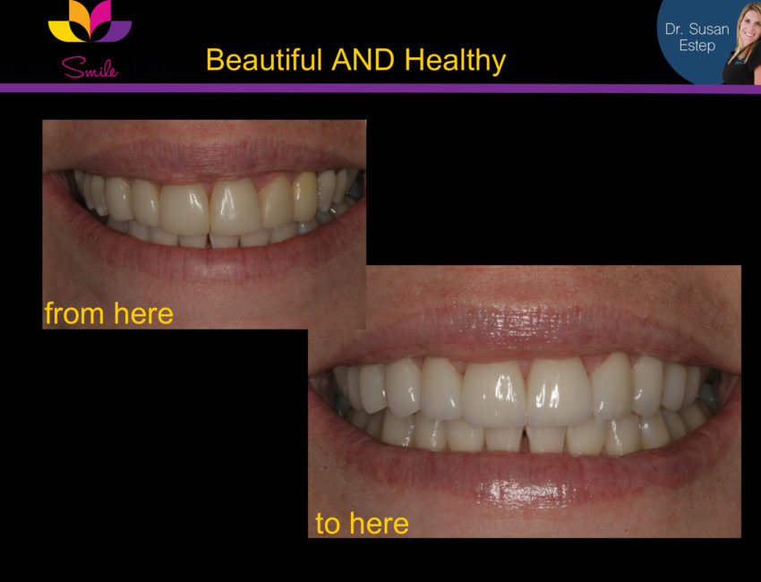 Intown smile studio teeth