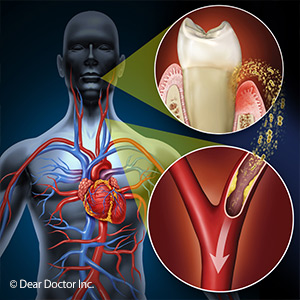 Studies show gum disease puts you at risk for cardiovascular disease.