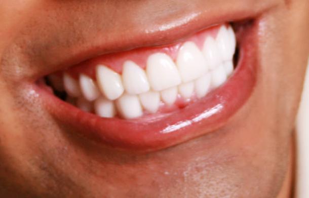 Dr Susan Estep- Intown smile Studio