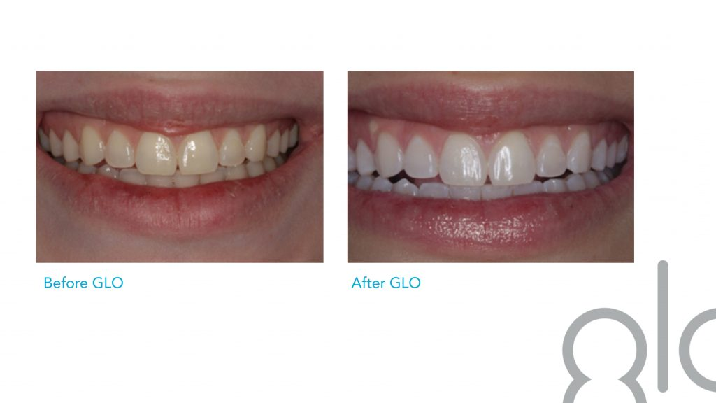 Glo Science Teeth Whitening Intown Smile Studio