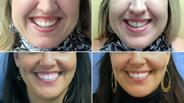 botox for gummy smile