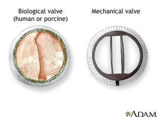 artificial-valve