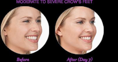 botox-wrinkles-crop